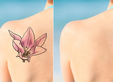 Tattoo Removal at Kalologie 360 Spa Starting At Just $149!