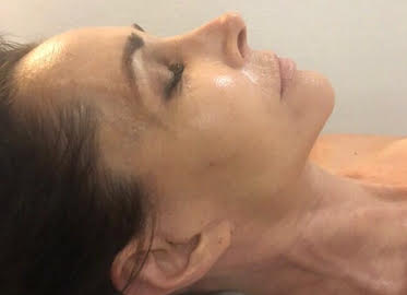 OxyGeneo 3-in-1 Super Facial at Kalologie 360 in Thousand Oaks. Choose One for $89 or Series of Three for Just $249! (Value $245-$595)